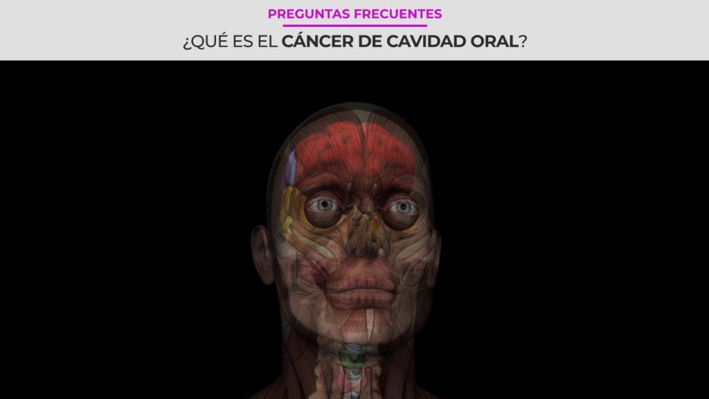 ¿Qué es el cáncer de cavidad oral?