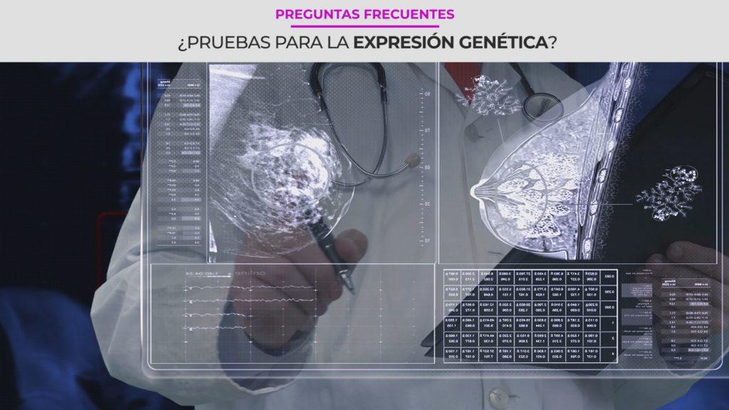 ¿Qué son las pruebas de expresión genética para el cáncer de seno?