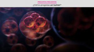 ¿Cómo progresa un tumor?