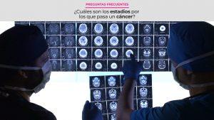 ¿Cuáles son los estadios por los que pasa un cáncer?